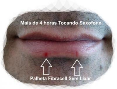 Fibracell_Sem_Lixar.jpg